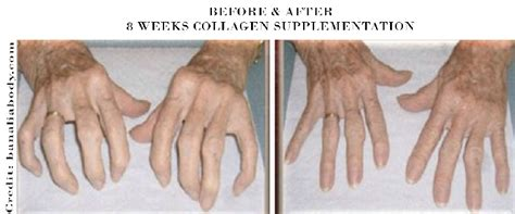 collagen-supplement-before and after | Get Collagen
