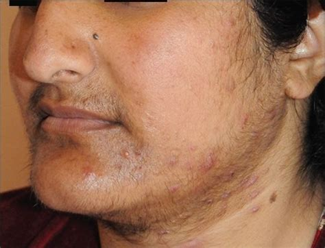 Polycystic Ovary Syndrome (PCOS) and Hirsutism-Furocyst