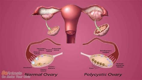 How to Permanently Cure Polycystic Ovary Syndrome (PCOS